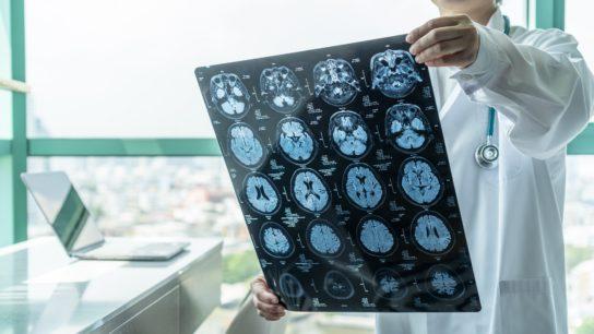 brain disease MRI
