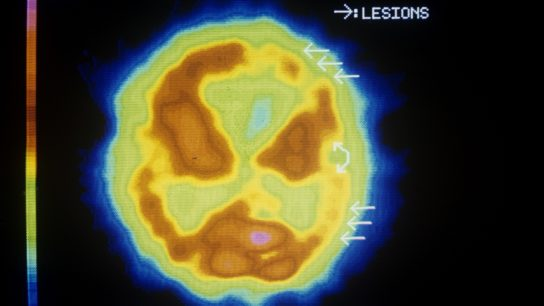 PET scan of brain with Alzheimers