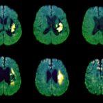 stroke, TIA, hemorrhagic stroke, hematoma